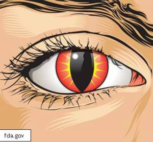 Use Caution when Buying Decorative Contact Lenses