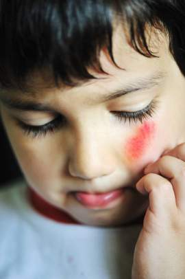 The Legal Explanation of Child Abuse
